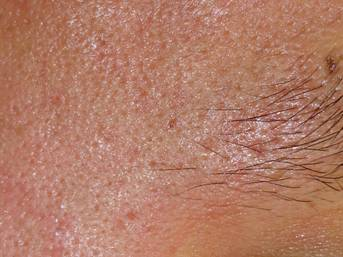 after non ablative resurfacing-r temple